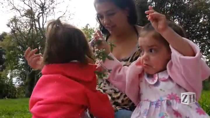 Gêmeas siamesas comemoram um ano da cirurgia de separação