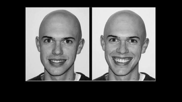 Saiba como identificar um sorriso falso