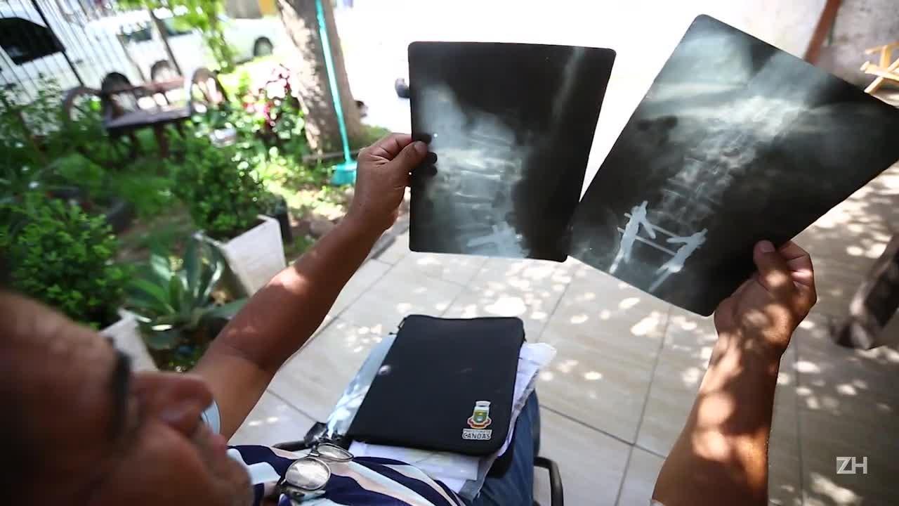 Pacientes vítimas da fraude nas próteses enfrentam sequelas