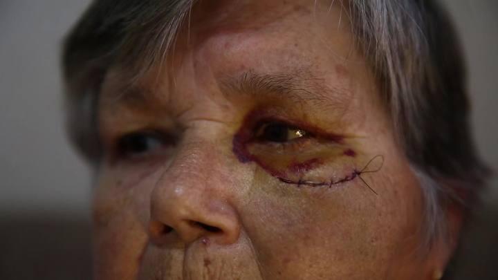 Idosa conta agressão em caminhada do Outubro Rosa