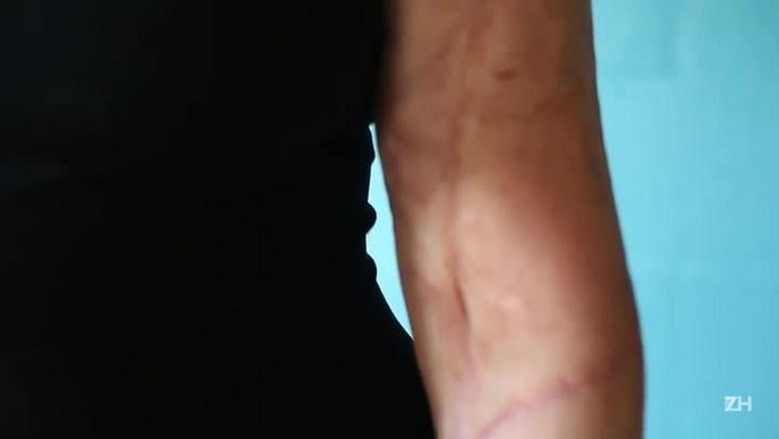 O corpo marcado de Berta